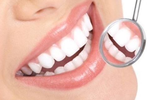 เคลือบผิวฟัว ช่วยให้ฟันแข็งแรงขึ้น