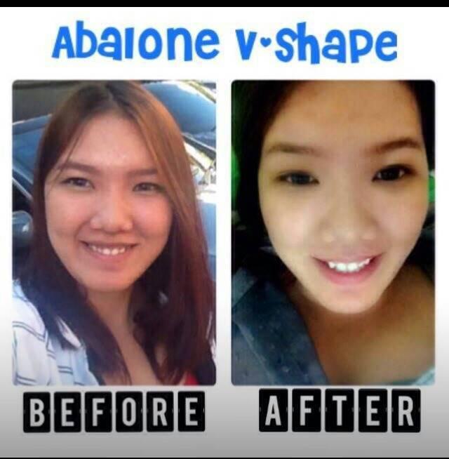 Abalone beauty cream  ครีมหน้าเด้ง เนียนใส อ่อนเยาว์